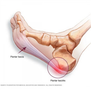 Plantar Heel Pain Notes
